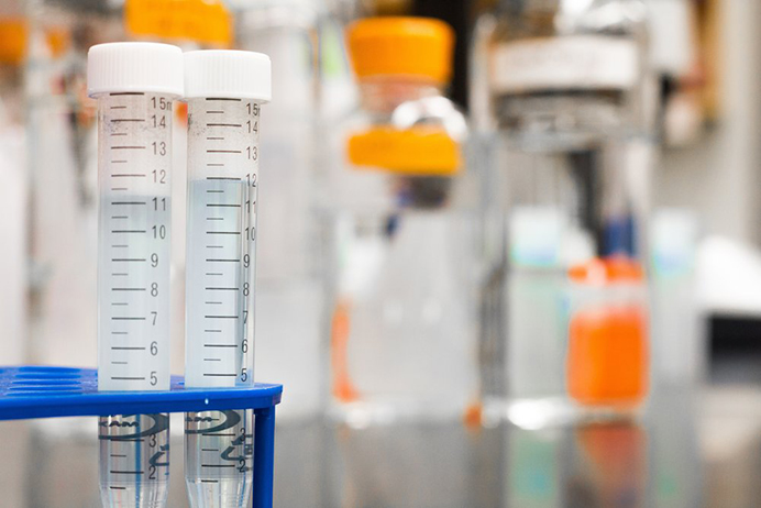 Gene therapy test tubes in a lab.